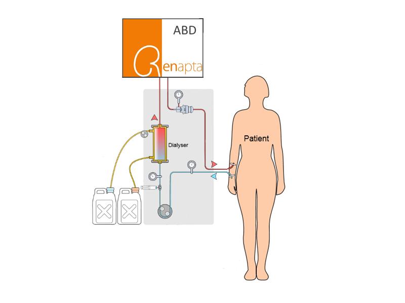ABDdialysisCombination